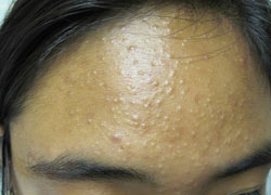 Keratosis Pilaris Treatment Over The Counter