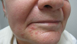 Mild Perioral Dermatitis Lips What is Perioral Dermatitis