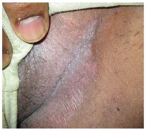 Inverse psoriasis occurs in the folds of the skin in areas which are likely to rub together and sweat 2